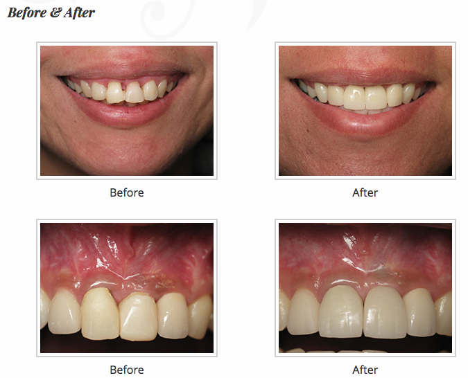 Before and after images of dental implant.