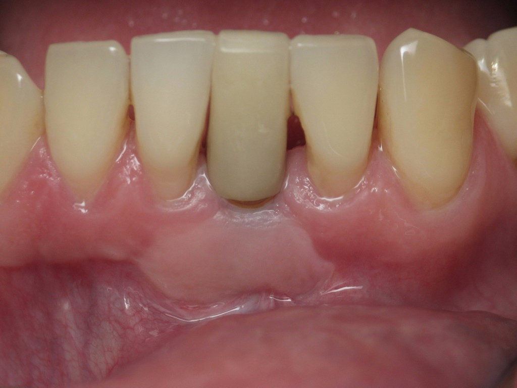 Implant on front teeth