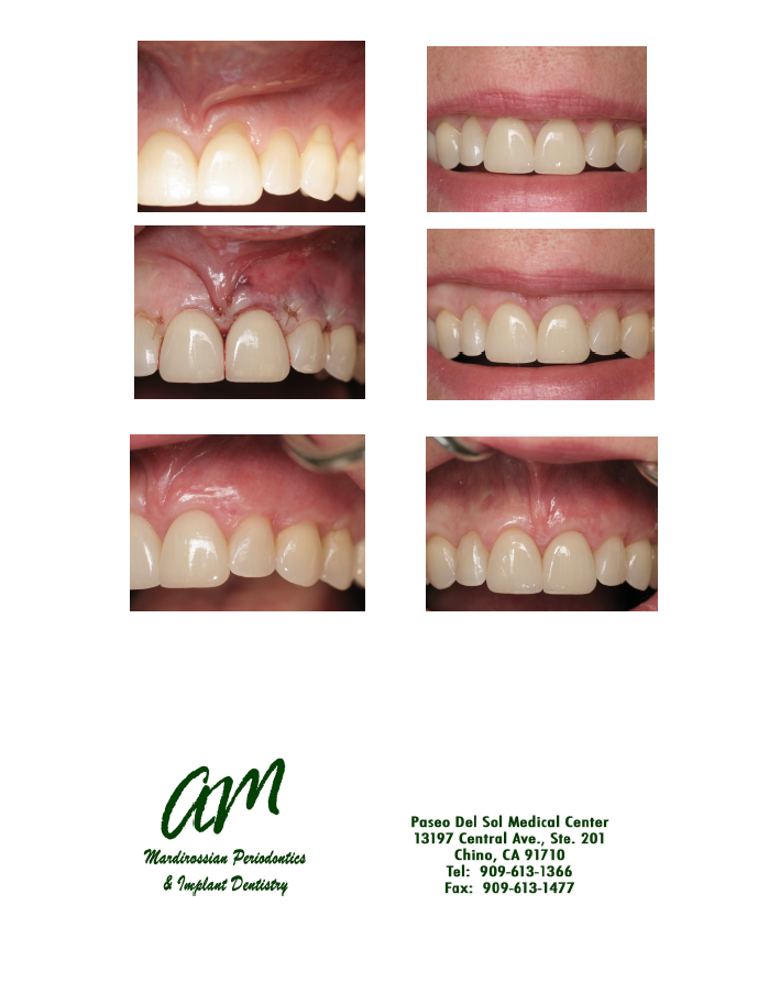 Treatment of Gum Recession and improve your Smile!